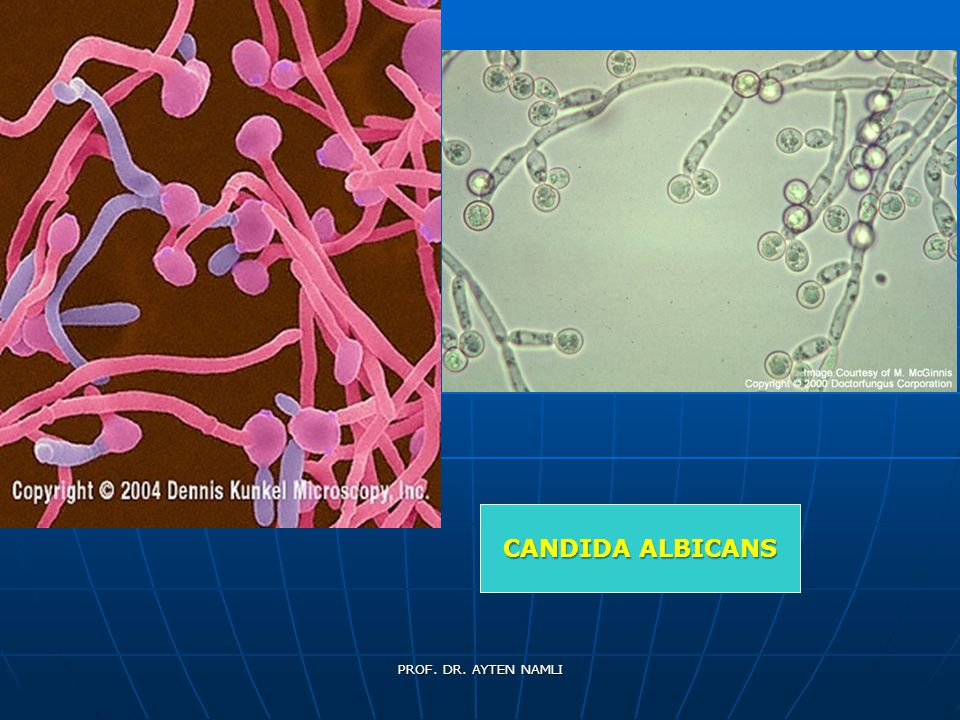 CANDIDA ALBICANS PROF. DR. AYTEN NAMLI