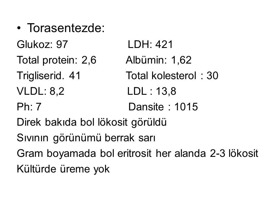 Torasentezde: Glukoz: 97 LDH: 421 Total protein: 2,6 Albümin: 1,62