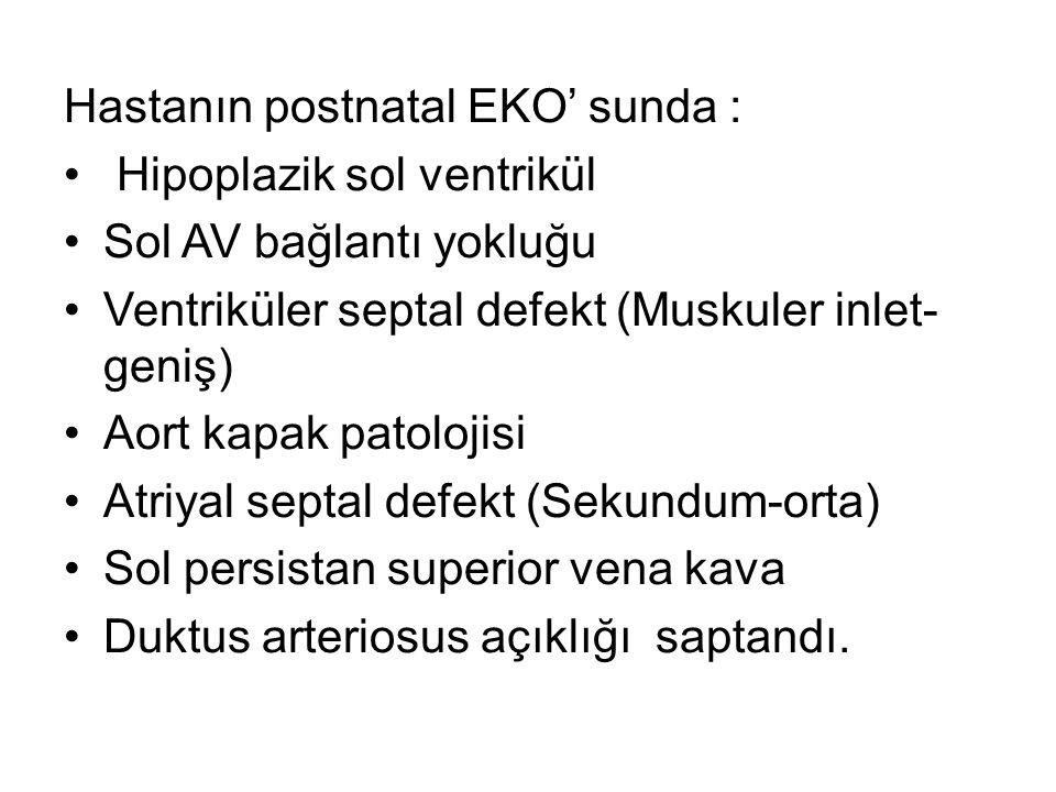 Hastanın postnatal EKO' sunda :