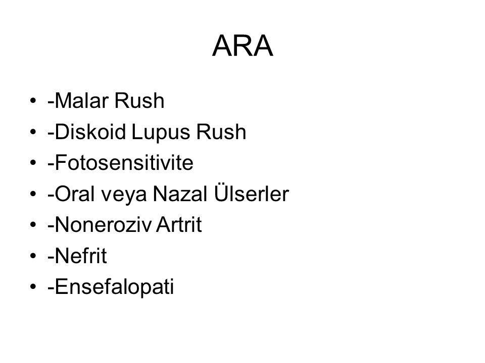 ARA -Malar Rush -Diskoid Lupus Rush -Fotosensitivite