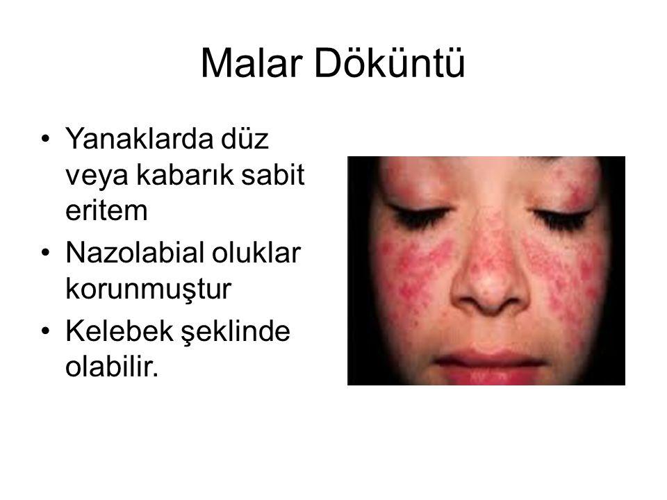 Malar Döküntü Yanaklarda düz veya kabarık sabit eritem
