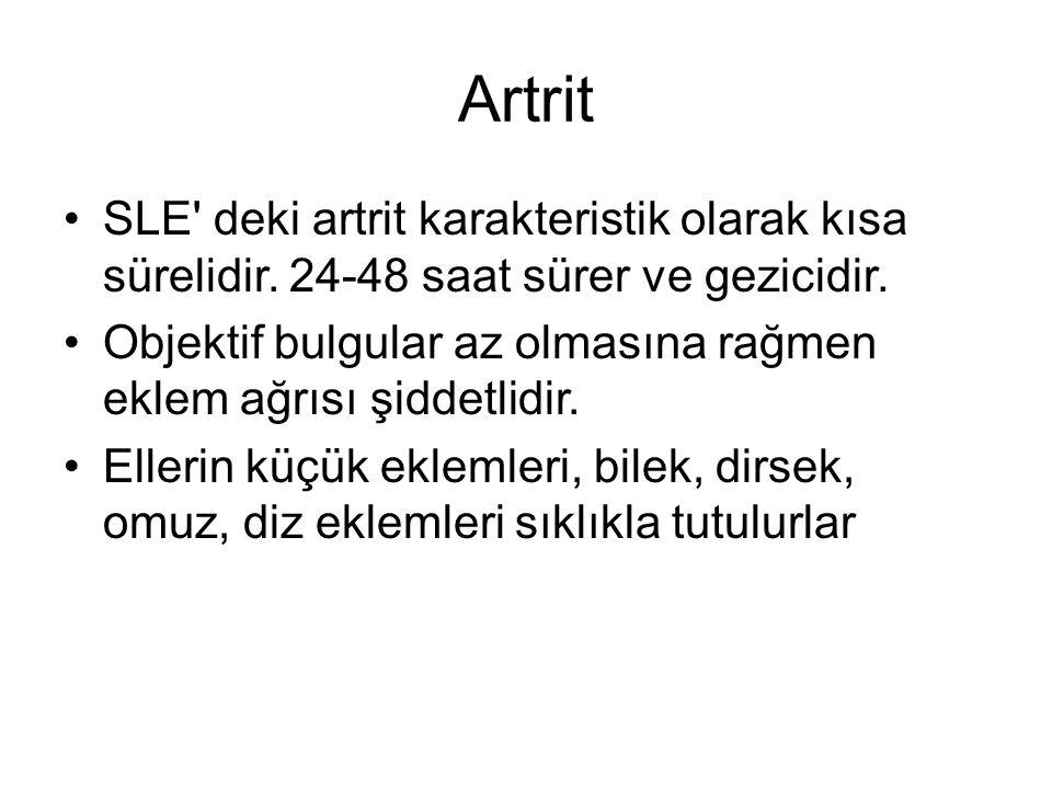 Artrit SLE deki artrit karakteristik olarak kısa sürelidir. 24-48 saat sürer ve gezicidir.