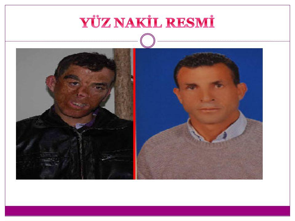İlk yüz nakli ameliyatı yapıldı . Yayın tarihi : 21.01.2012
