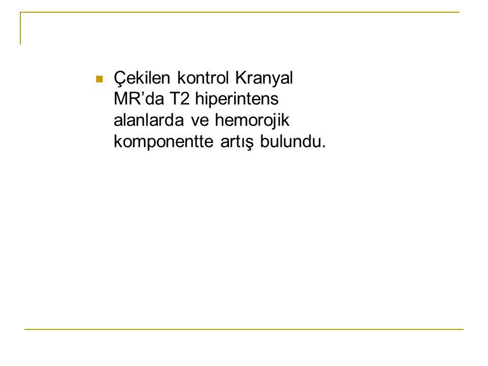 Çekilen kontrol Kranyal MR'da T2 hiperintens alanlarda ve hemorojik komponentte artış bulundu.