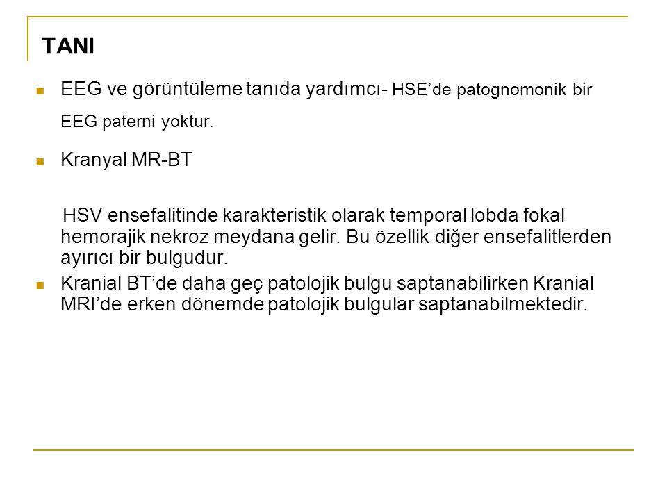 TANI EEG ve görüntüleme tanıda yardımcı- HSE'de patognomonik bir EEG paterni yoktur. Kranyal MR-BT.