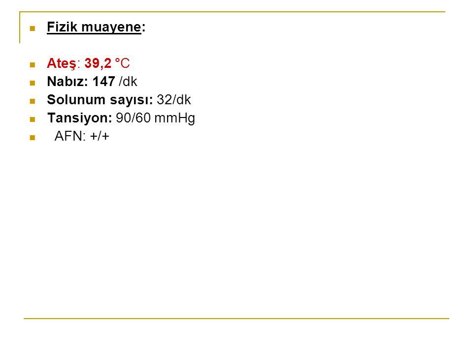 Fizik muayene: Ateş: 39,2 °C Nabız: 147 /dk Solunum sayısı: 32/dk Tansiyon: 90/60 mmHg AFN: +/+