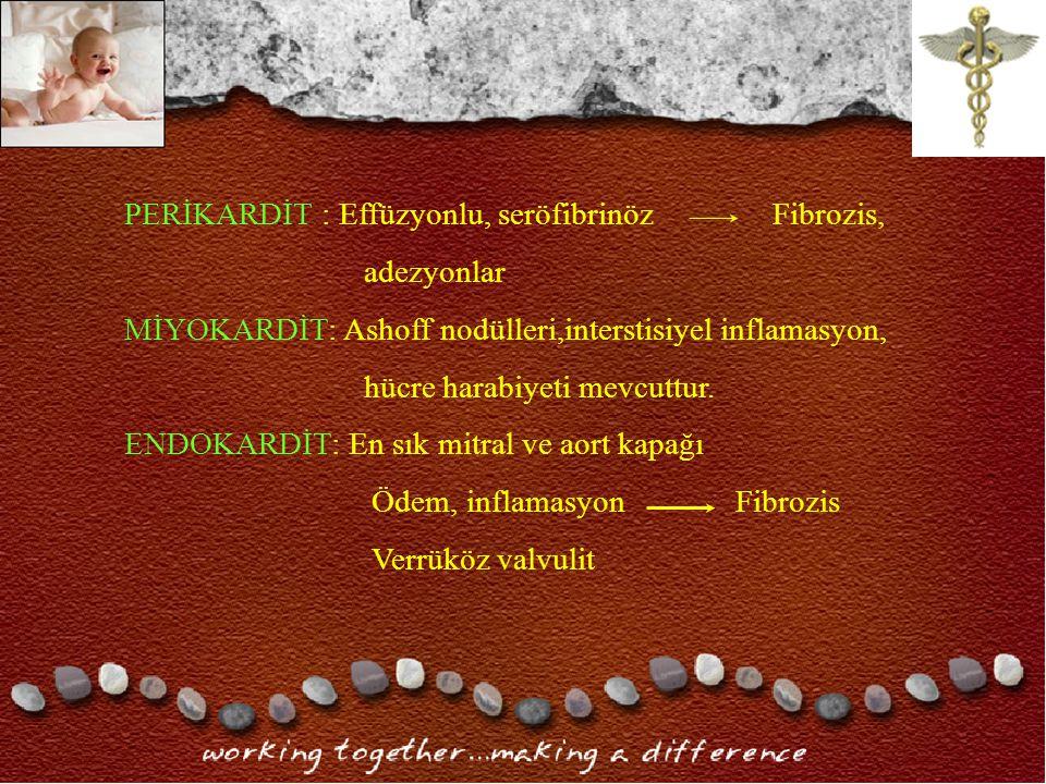 PERİKARDİT : Effüzyonlu, seröfibrinöz Fibrozis,