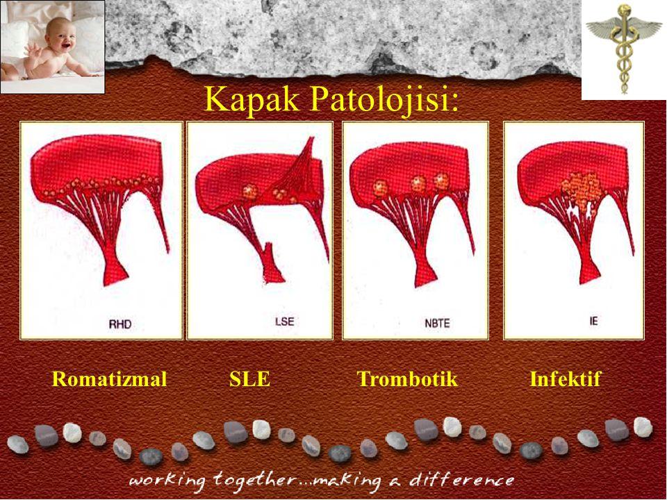 Kapak Patolojisi: Romatizmal SLE Trombotik Infektif