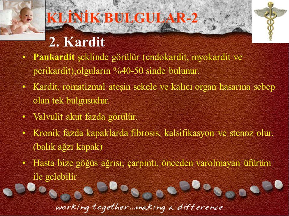 KLİNİK BULGULAR-2 2. Kardit