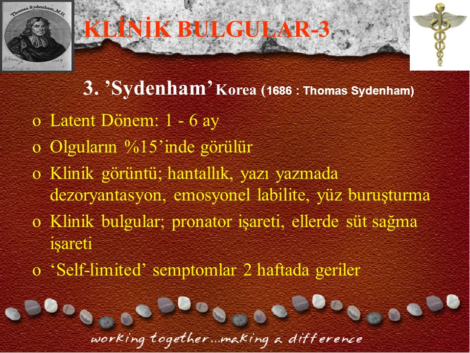 KLİNİK BULGULAR-3 3. 'Sydenham' Korea (1686 : Thomas Sydenham)