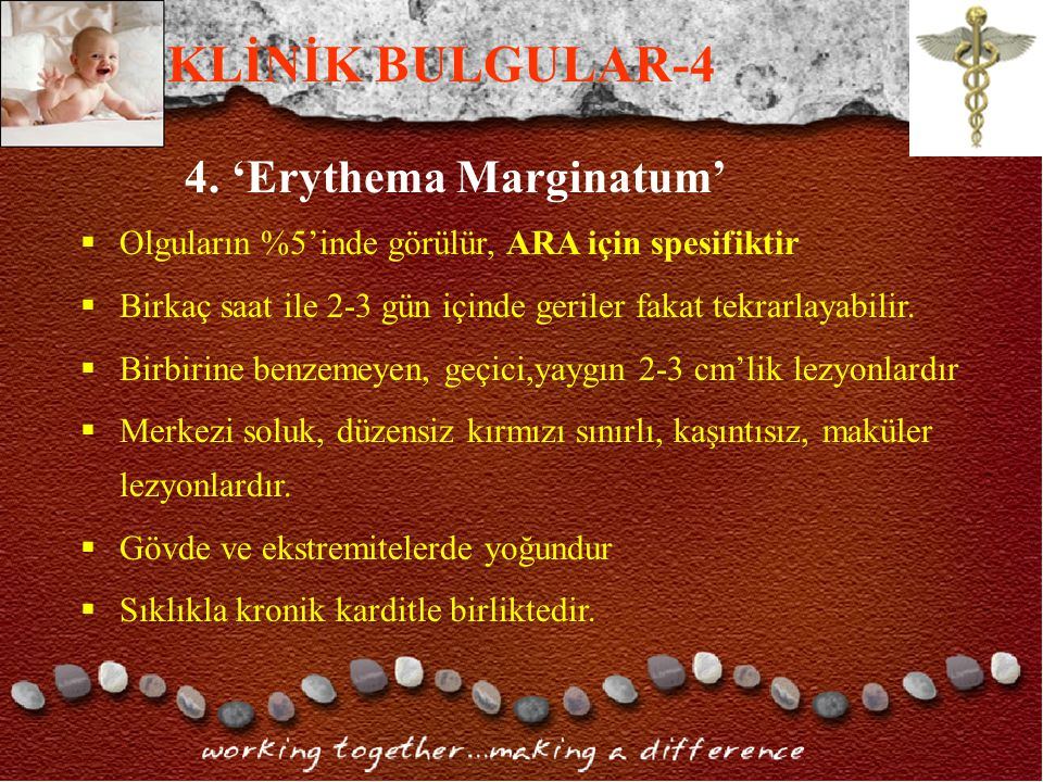 KLİNİK BULGULAR-4 4. 'Erythema Marginatum'