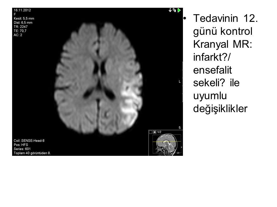 Tedavinin 12. günü kontrol Kranyal MR: infarkt. / ensefalit sekeli