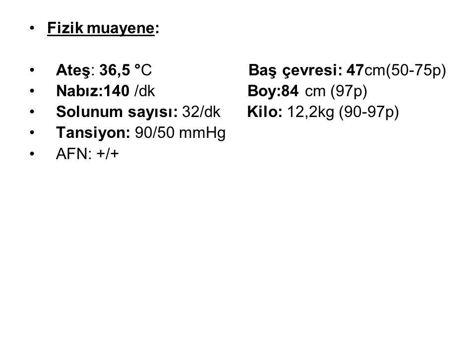 Fizik muayene: Ateş: 36,5 °C Baş çevresi: 47cm(50-75p) Nabız:140 /dk Boy:84 cm (97p)