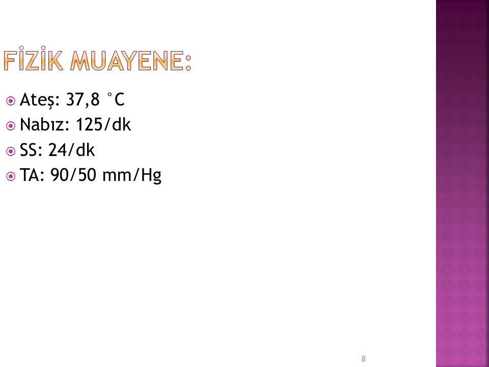FİZİK MUAYENE: Ateş: 37,8 °C Nabız: 125/dk SS: 24/dk TA: 90/50 mm/Hg