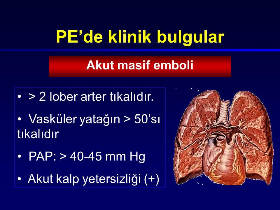 PE'de klinik bulgular Akut masif emboli > 2 lober arter tıkalıdır.