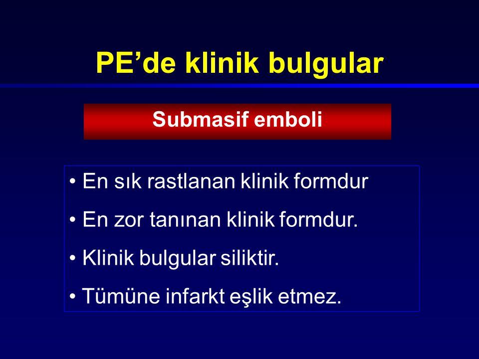 PE'de klinik bulgular Submasif emboli En sık rastlanan klinik formdur