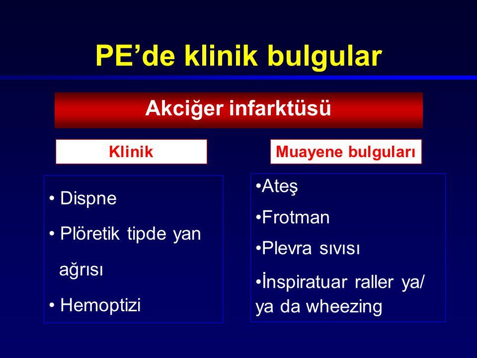 PE'de klinik bulgular Akciğer infarktüsü Dispne Ateş Frotman