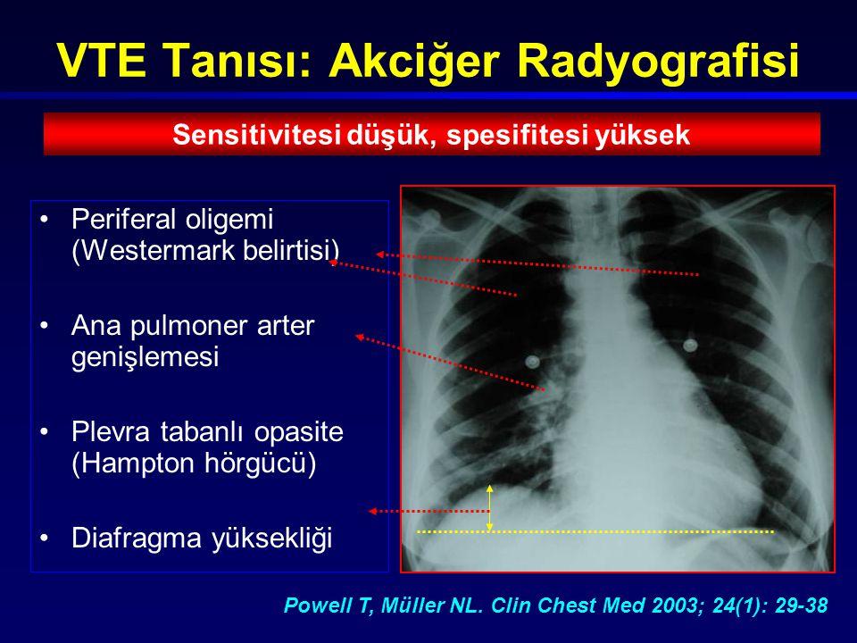 VTE Tanısı: Akciğer Radyografisi