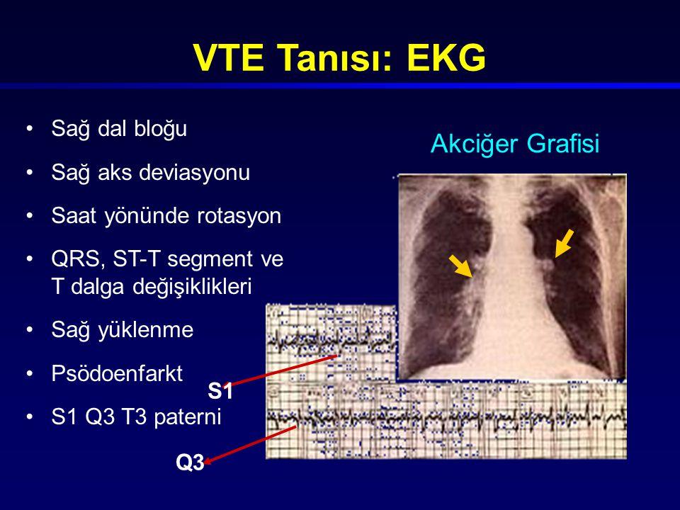 VTE Tanısı: EKG Akciğer Grafisi Sağ dal bloğu Sağ aks deviasyonu
