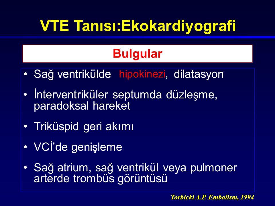 VTE Tanısı:Ekokardiyografi