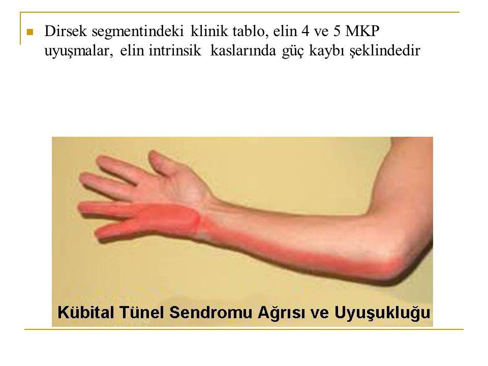 Dirsek segmentindeki klinik tablo, elin 4 ve 5 MKP uyuşmalar, elin intrinsik kaslarında güç kaybı şeklindedir