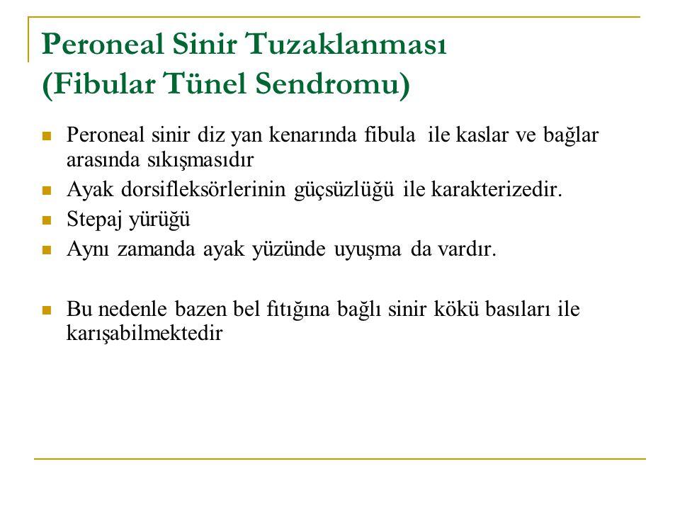 Peroneal Sinir Tuzaklanması (Fibular Tünel Sendromu)