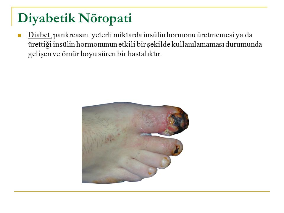Diyabetik Nöropati