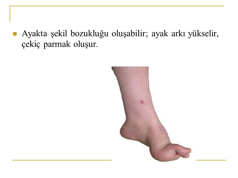 Ayakta şekil bozukluğu oluşabilir; ayak arkı yükselir, çekiç parmak oluşur.