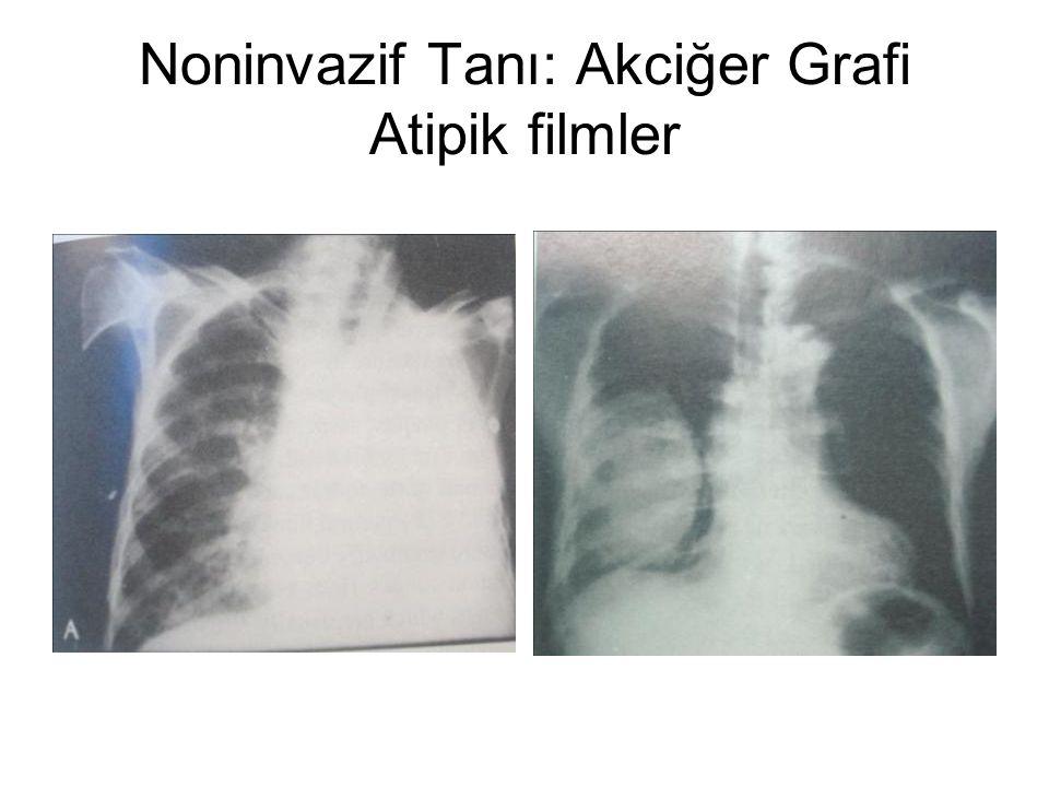 Noninvazif Tanı: Akciğer Grafi Atipik filmler
