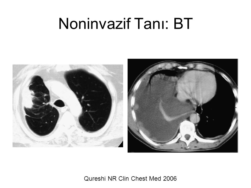 Noninvazif Tanı: BT Qureshi NR Clin Chest Med 2006