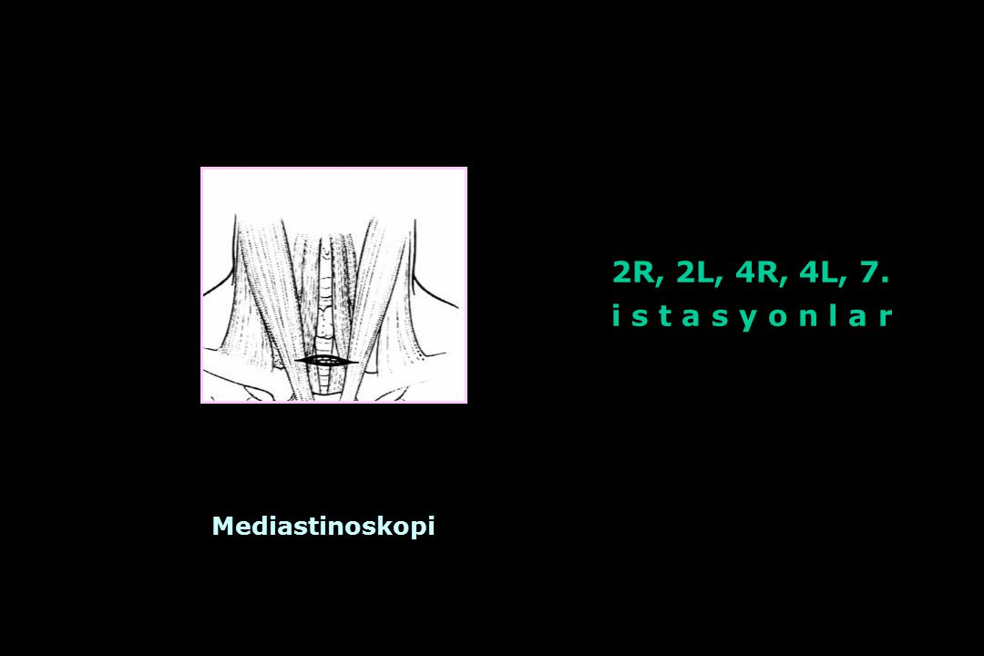2R, 2L, 4R, 4L, 7. i s t a s y o n l a r Mediastinoskopi