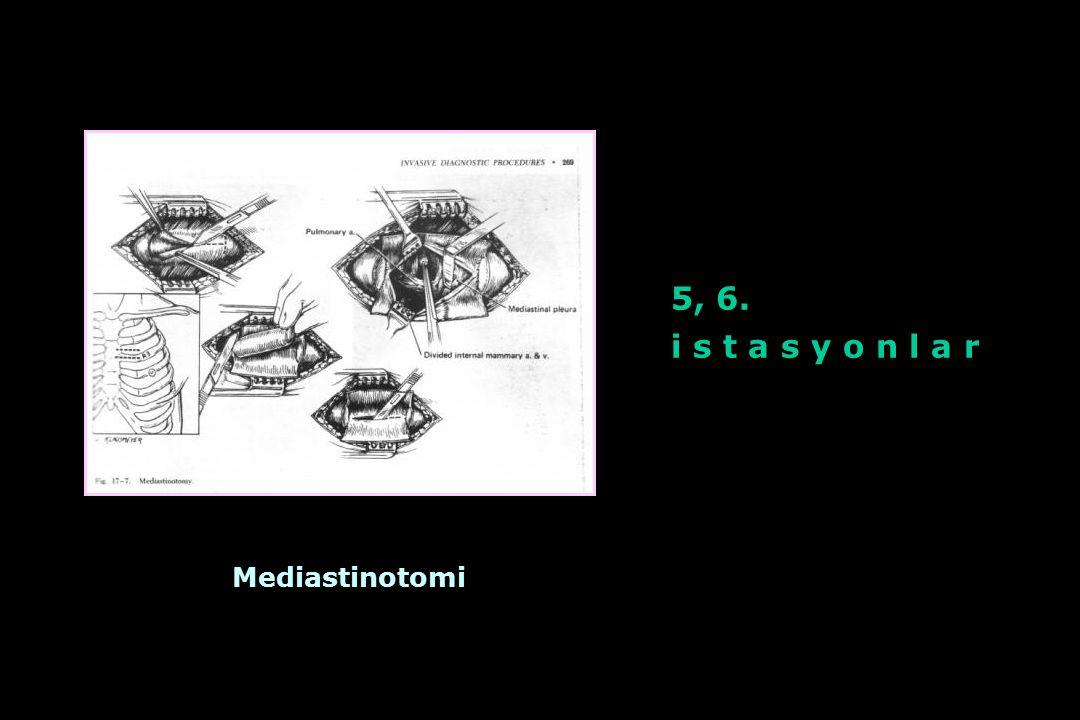 5, 6. i s t a s y o n l a r Mediastinotomi