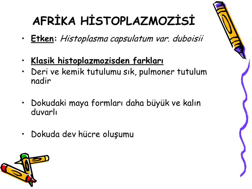 AFRİKA HİSTOPLAZMOZİSİ