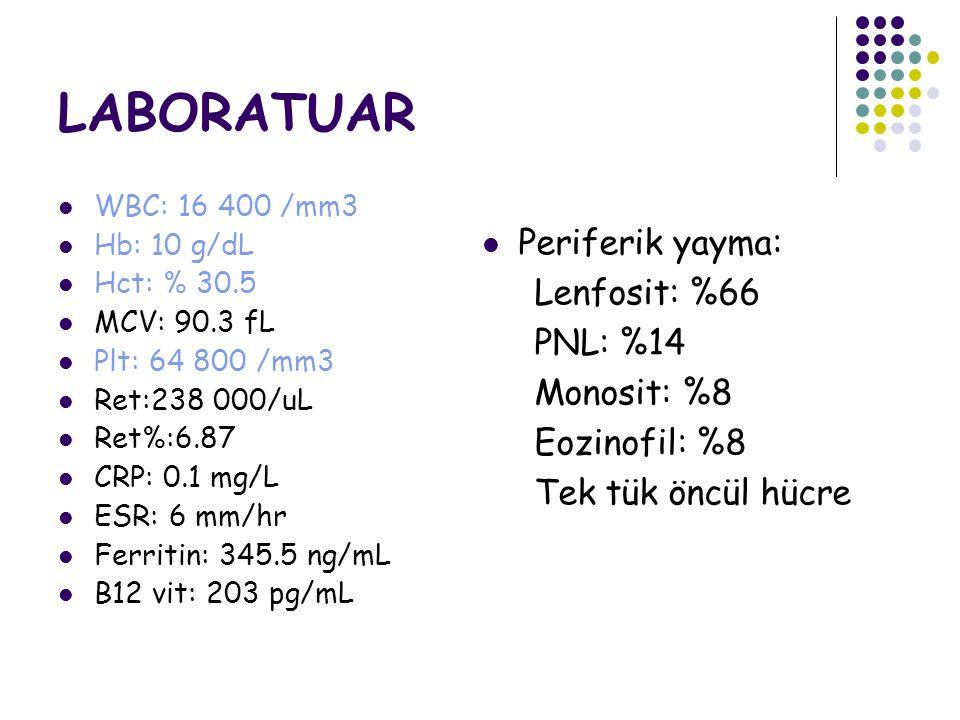 LABORATUAR Periferik yayma: Lenfosit: %66 PNL: %14 Monosit: %8