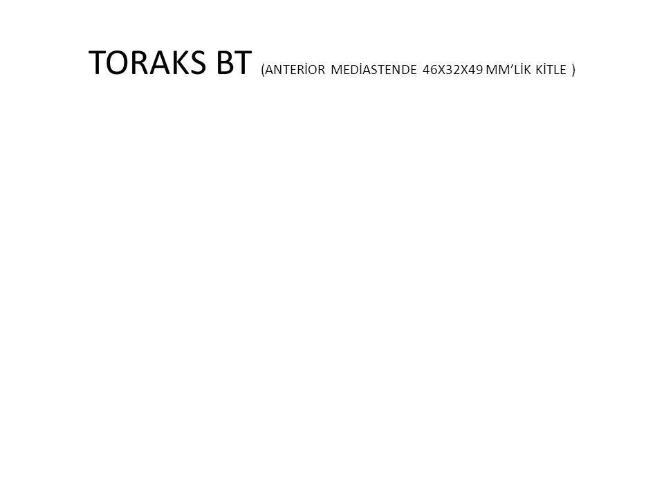 TORAKS BT (ANTERİOR MEDİASTENDE 46X32X49 MM'LİK KİTLE )