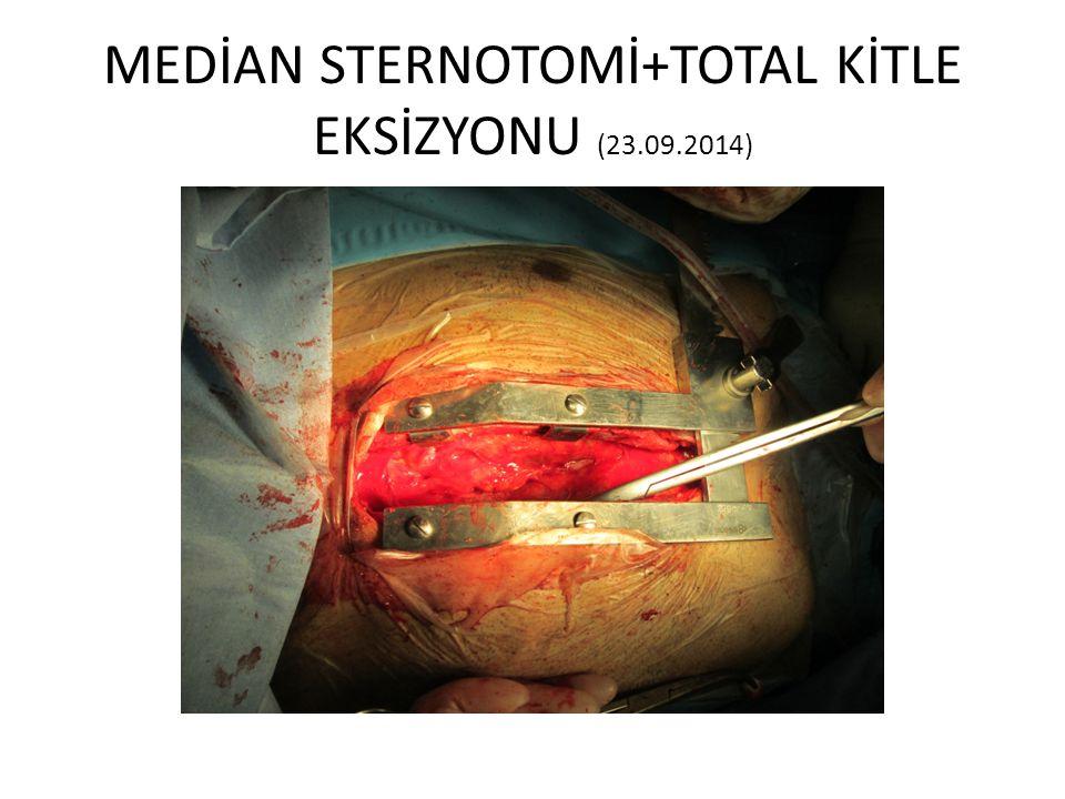 MEDİAN STERNOTOMİ+TOTAL KİTLE EKSİZYONU (23.09.2014)