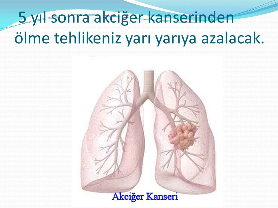 5 yıl sonra akciğer kanserinden ölme tehlikeniz yarı yarıya azalacak.
