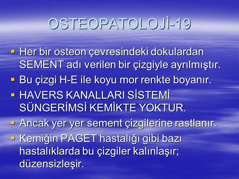 OSTEOPATOLOJİ-19 Her bir osteon çevresindeki dokulardan SEMENT adı verilen bir çizgiyle ayrılmıştır.