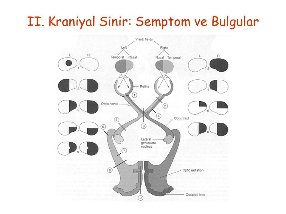 II. Kraniyal Sinir: Semptom ve Bulgular