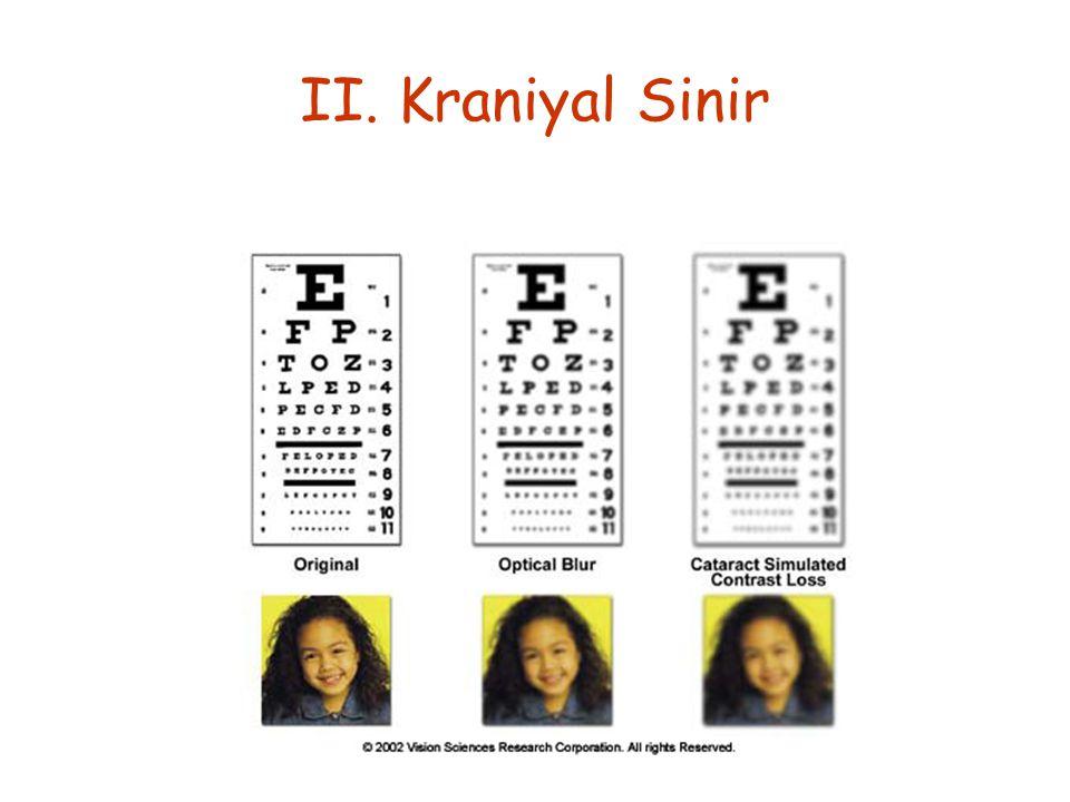 II. Kraniyal Sinir