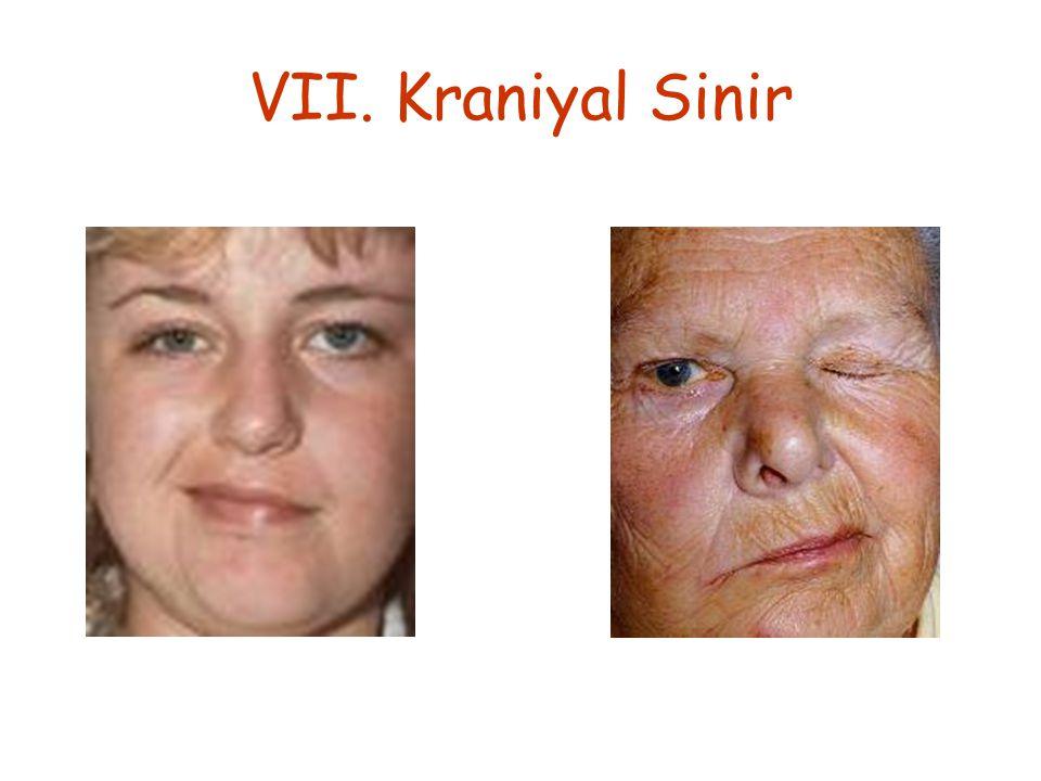 VII. Kraniyal Sinir