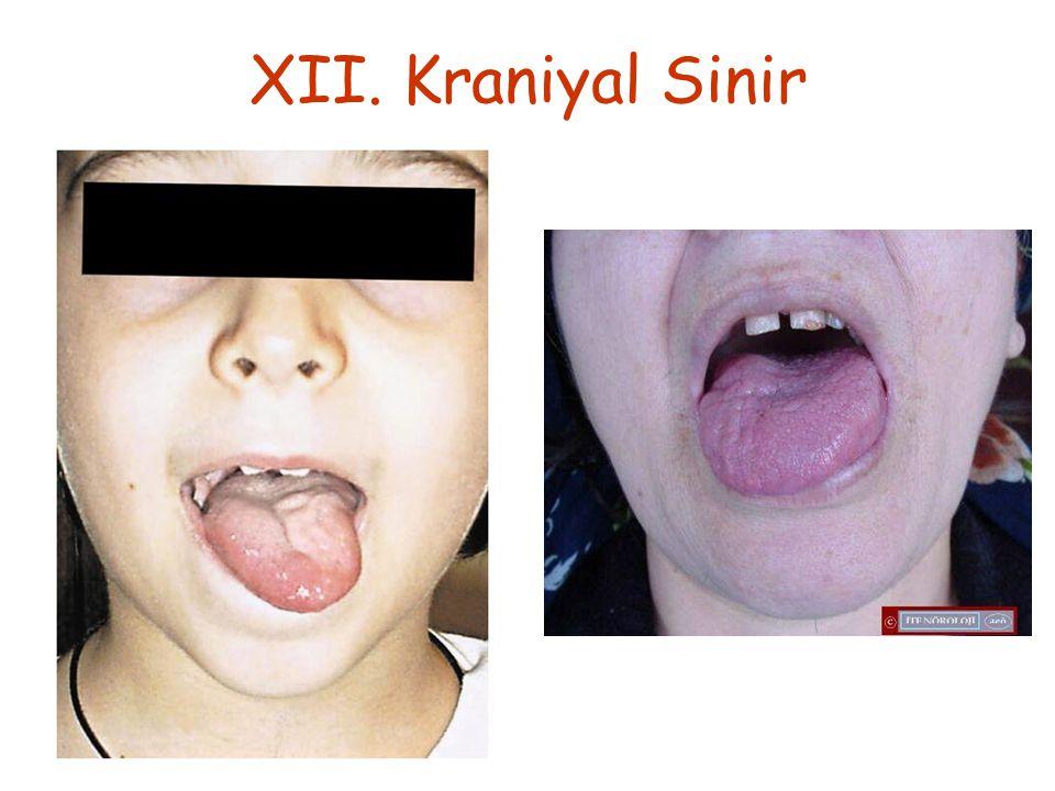 XII. Kraniyal Sinir