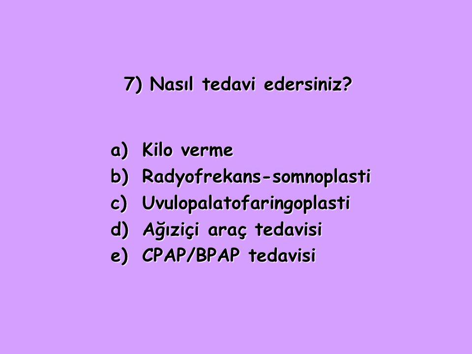 7) Nasıl tedavi edersiniz