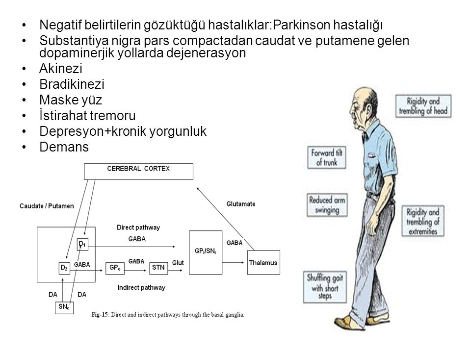 Negatif belirtilerin gözüktüğü hastalıklar:Parkinson hastalığı