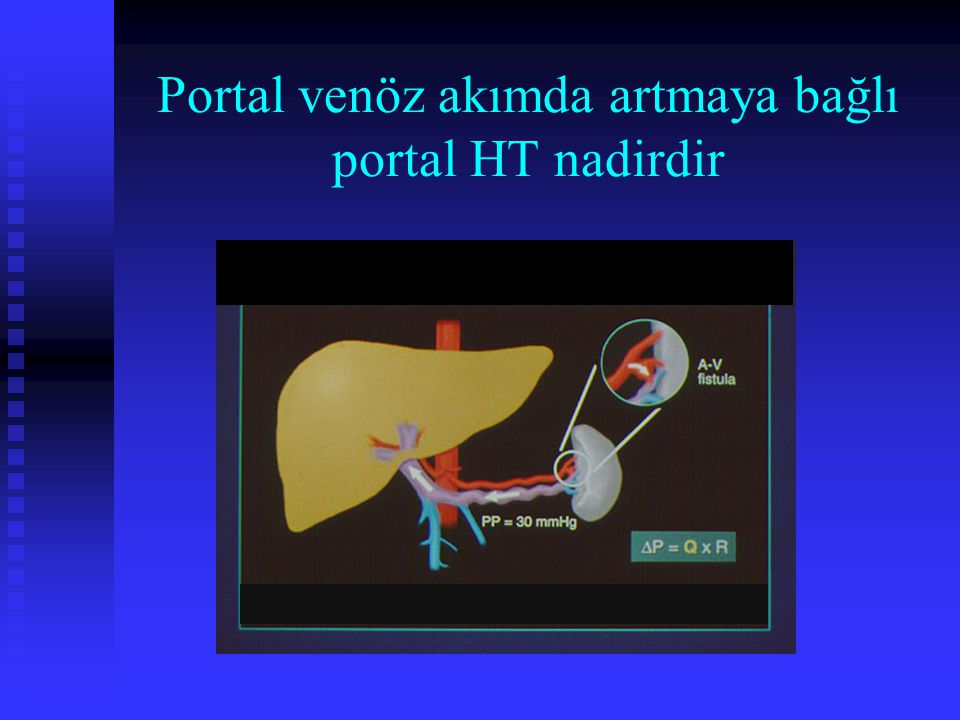 Portal venöz akımda artmaya bağlı portal HT nadirdir