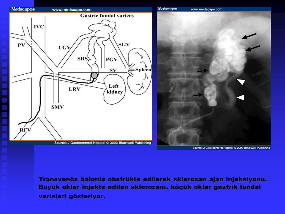 Transvenöz balonla obstrükte edilerek sklerozan ajan injeksiyonu