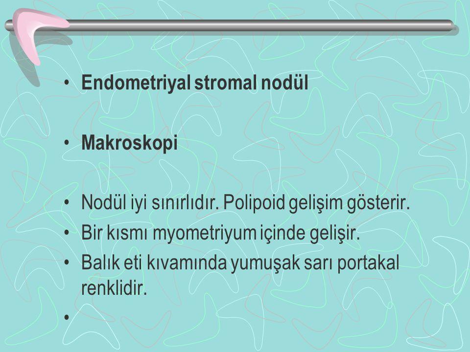 Endometriyal stromal nodül