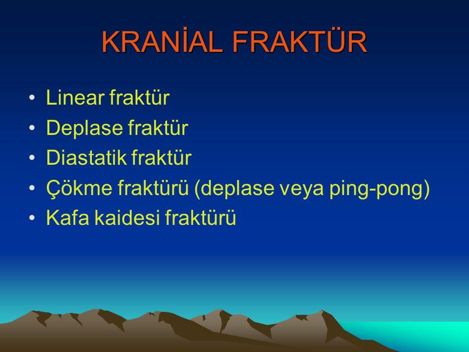 KRANİAL FRAKTÜR Linear fraktür Deplase fraktür Diastatik fraktür