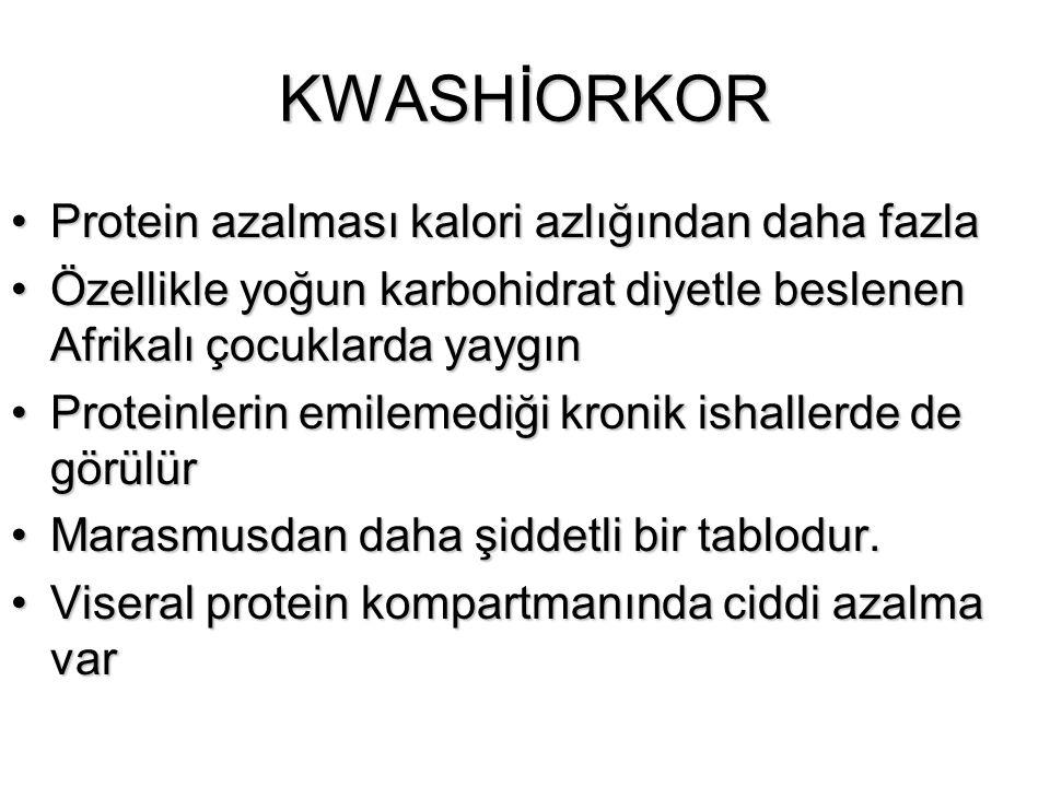 KWASHİORKOR Protein azalması kalori azlığından daha fazla