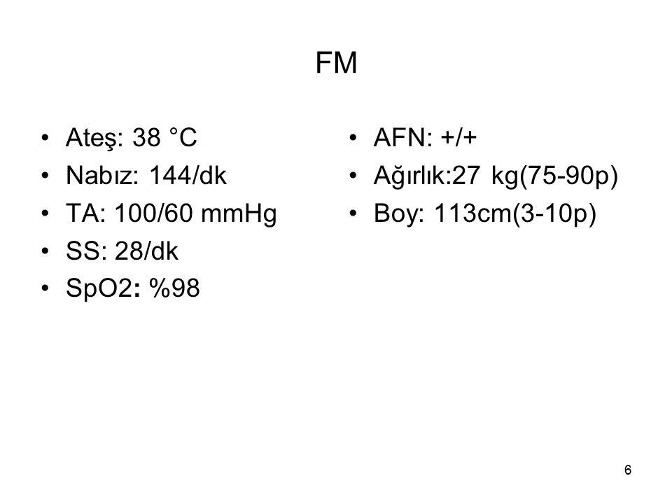 FM Ateş: 38 °C Nabız: 144/dk TA: 100/60 mmHg SS: 28/dk SpO2: %98